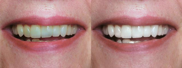 whitening - Long Grove Dental Studio