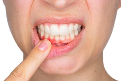 woman indicating gum irritation