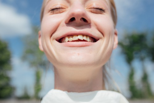 smiling woman with crooked teeth